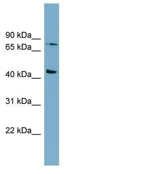 Western blot - Anti-Frizzled 6 antibody (ab98933)