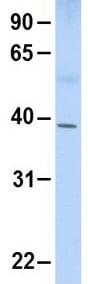 Western blot - Anti-OAS1 antibody (ab99024)