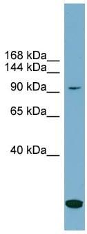 Western blot - Anti-SLC12A4 antibody (ab99053)