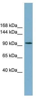 Western blot - Anti-SLC12A3 antibody (ab99097)