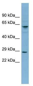 Western blot - Anti-DERL3 antibody (ab99107)