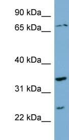 Western blot - Anti-PDP2 antibody (ab99170)