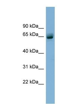 Western blot - Anti-SLFN12 antibody (ab99200)