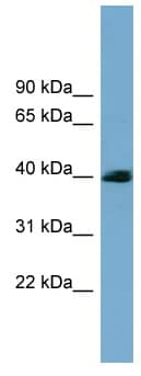 Western blot - Anti-SASH3 antibody (ab99203)