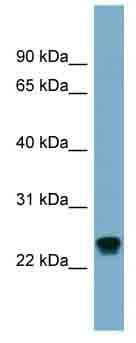 Western blot - Anti-RAB22A antibody (ab99205)