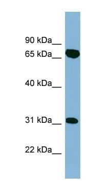 Western blot - Anti-HIRIP3 antibody (ab99208)