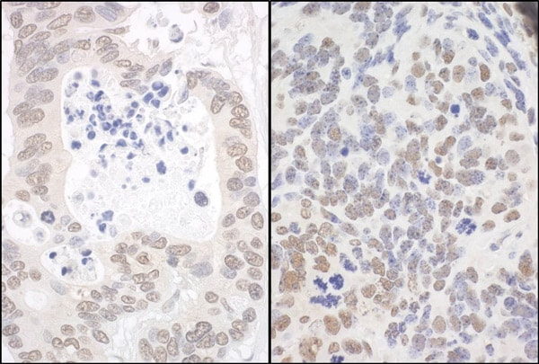 Immunohistochemistry (Formalin/PFA-fixed paraffin-embedded sections) - Anti-Apoptosis inhibitor 5 antibody (ab99307)