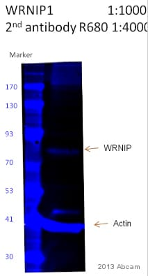 Western blot - Anti-WHIP antibody (ab99316)
