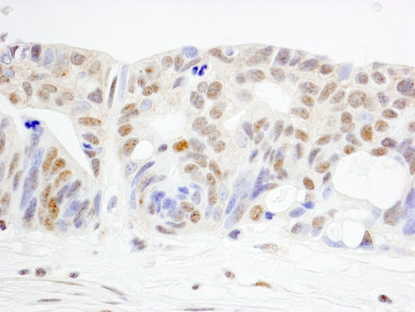 Immunohistochemistry (Formalin/PFA-fixed paraffin-embedded sections) - Anti-WHIP antibody (ab99316)
