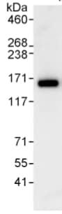 Immunoprecipitation - Anti-ANKIB1 antibody (ab99345)