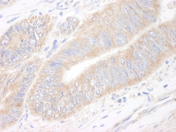 Immunohistochemistry (Formalin/PFA-fixed paraffin-embedded sections) - Anti-p90 Autoantigen antibody (ab99396)