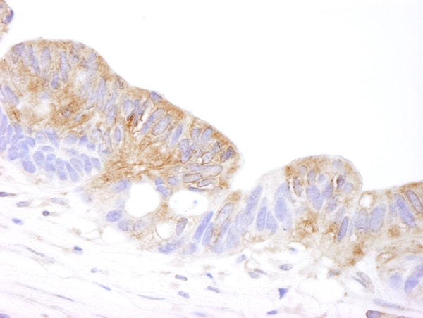 Immunohistochemistry (Formalin/PFA-fixed paraffin-embedded sections) - Anti-CORO1B antibody (ab99406)