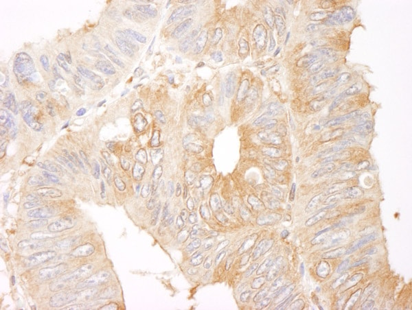 Immunohistochemistry (Formalin/PFA-fixed paraffin-embedded sections) - Anti-CORO1B antibody (ab99407)