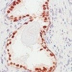 Immunohistochemistry (Formalin/PFA-fixed paraffin-embedded sections) - Anti-FOXA1 antibody [SP88], prediluted (ab99893)